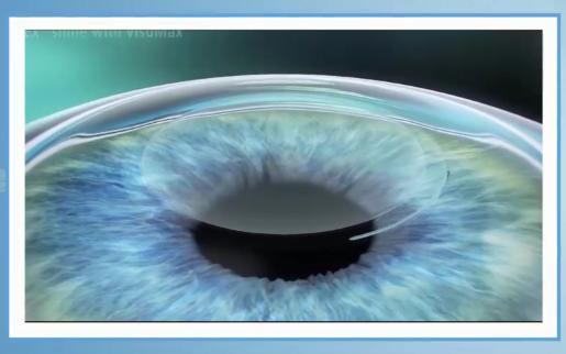 角膜塑形镜,近视,珠海希玛眼科