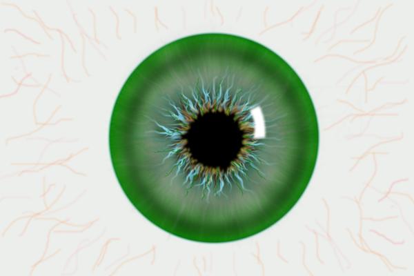 青光眼,高度近视患者,用眼过度,珠海希玛眼科