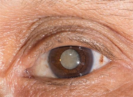 白内障,白内障手术,飞秒白内障手术,珠海希玛眼